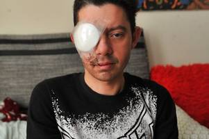 cyclist told he is permanently blind after crash with couple who fled the scene