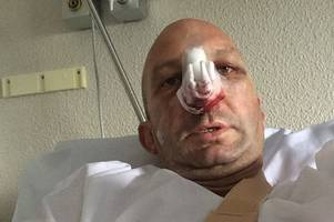 gang of vicious majorca thugs leave brit ex-pat left with horrific injuries