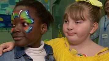 cleft palate: girl, 8, launches support club