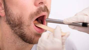 yes, you can get throat gonorrhea