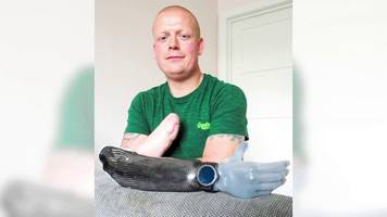 'one tiny wound cost me my hand'