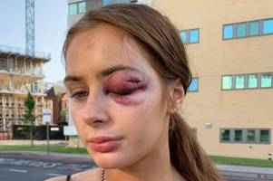 teen girl punched unconscious by man following her from club - because she said these three words