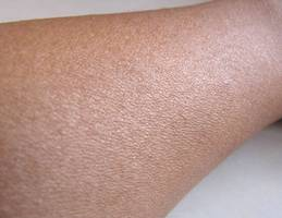 Hope for chronic pain sufferers as scientists discover new pain-sensing organ in the skin