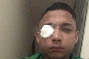 celtic hero emilio izaguirre reveals glass in his eye during terrifying honduras riot