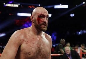 Tyson Fury beats Otto Wallin by unanimous decision despite deep cuts