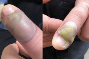 scots woman issues nail biting warning after pal contracts deadly infection