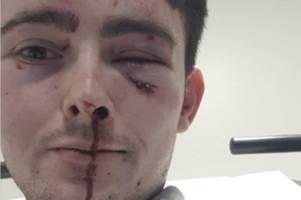 bartender left with fractured eye sockets after being jumped by two thugs in glasgow