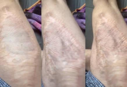 see inside dude's leg through skin graft window